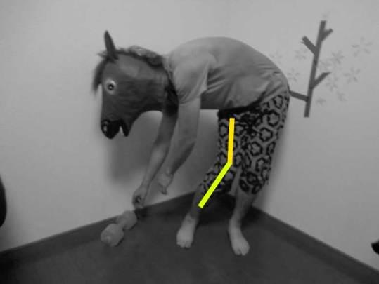 脱臼肢位,人工股関節,後方進入,禁忌動作,屈曲,内転,内旋
