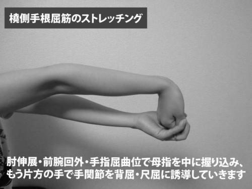 橈側手根屈筋のストレッチング