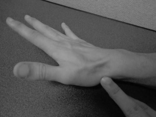 長母指外転筋