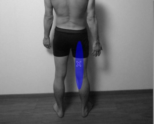 半腱様筋,半膜様筋,トリガーポイント,関連痛,痛み