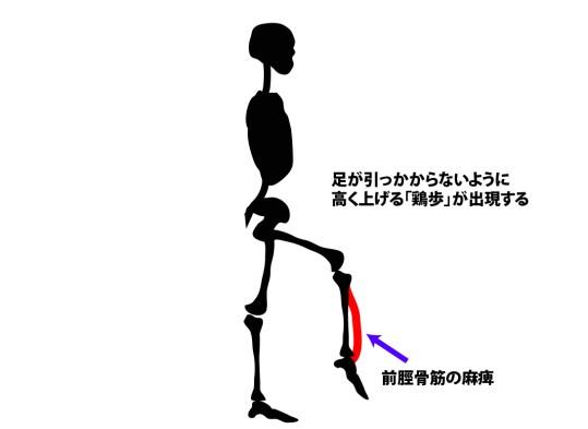 歩行時の筋活動|鶏歩