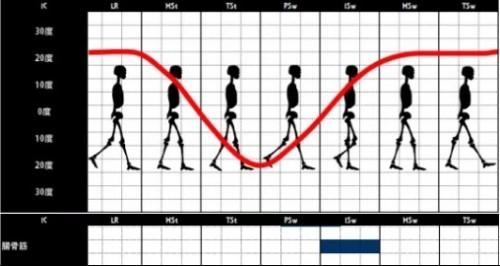 腸骨筋|腸腰筋の歩行時の筋活動