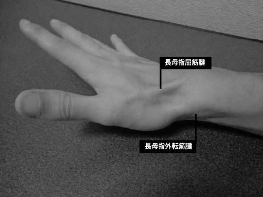 長母指伸筋腱の隆起