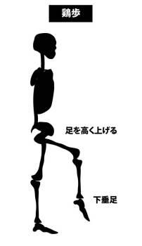 鶏歩|腓骨神経麻痺