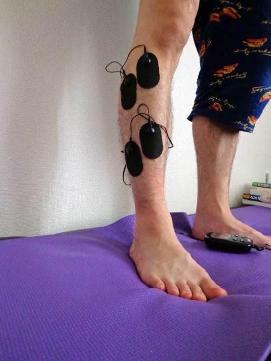 腓骨神経麻痺のパッドの貼り方/前脛骨筋の運動点