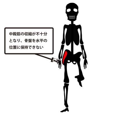 変形性股関節症|トレンデレンブルグ歩行