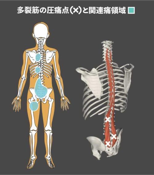 専門職向け】多裂筋のトリガーポ...