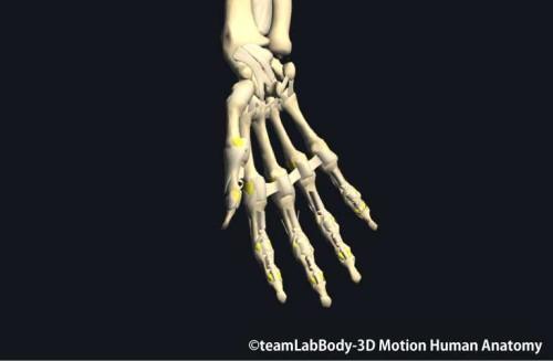 手指の副側副靭帯