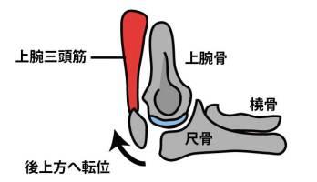 肘頭骨折の転位