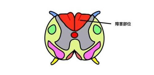 脊髄後索の障害