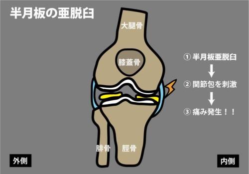 半月板亜脱臼に伴う痛み