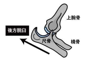 肘関節脱臼