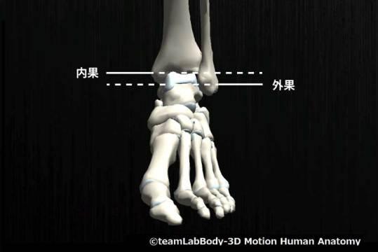 足関節捻挫|内反捻挫が多い理由