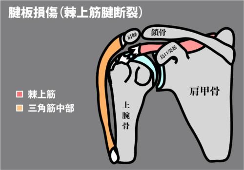 腱板損傷:棘上筋断裂