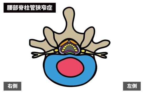 腰痛の原因:腰部脊柱管狭窄症