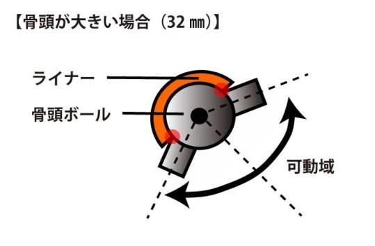 人工股関節|骨頭32ミリ