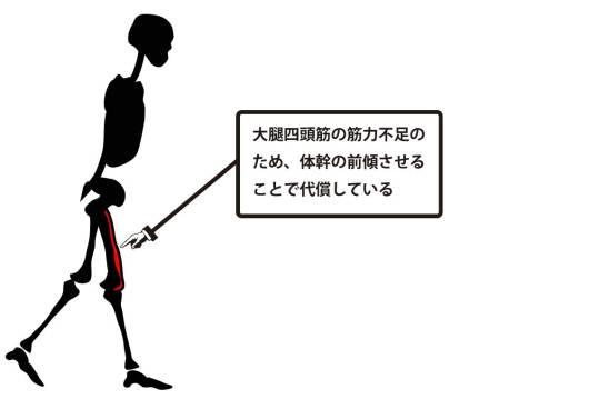 異常歩行|大腿四頭筋の筋力不足