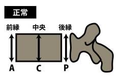 椎体骨折の圧潰の種類|正常