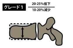 椎体骨折|SQ法|グレード1