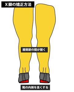 O脚とX脚の矯正方法|インソール|中敷き②