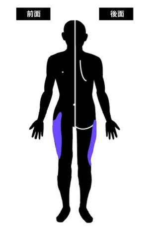 大腿外側皮神経の知覚支配領域