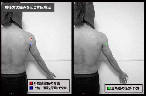 肩後方に痛みを起こす圧痛点