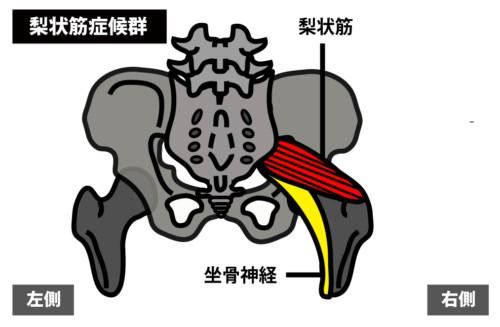 殿部の痛み:梨状筋症候群