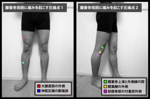 膝蓋骨周囲に痛みを起こす圧痛点