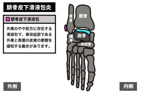 足関節前方の痛み|腓骨皮下滑液包炎