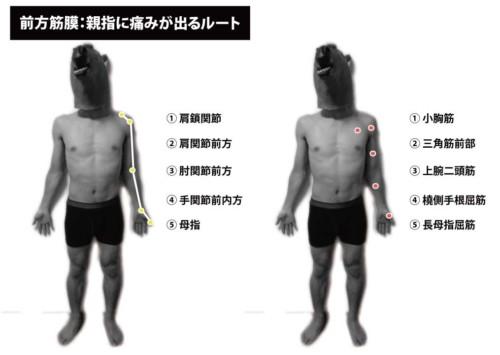 前方筋膜:親指の痛み