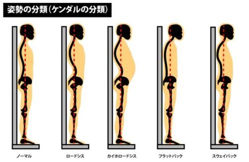 姿勢の分類(ケンダルの分類)