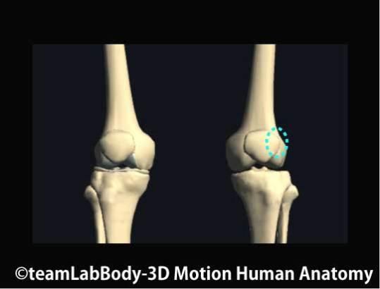 膝蓋骨の癒着点