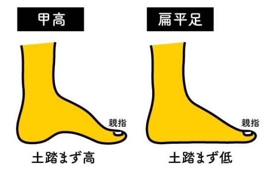 甲高(ハイアーチ)
