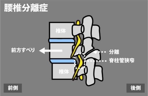 腰椎分離症2