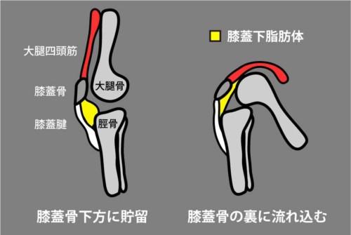膝蓋下脂肪体のポジション