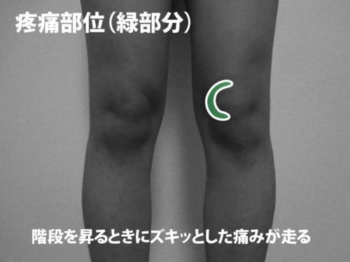 膝蓋下脂肪体損傷の疼痛部位