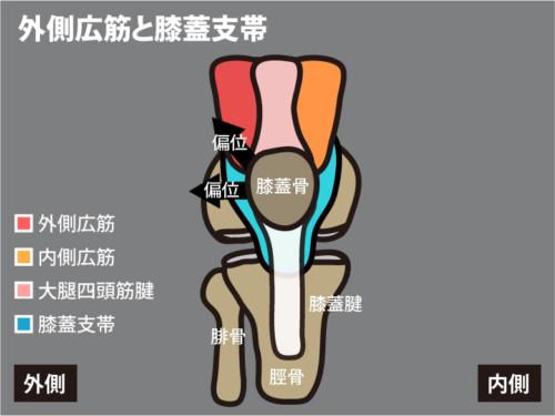 外側広筋と外側膝蓋支帯1