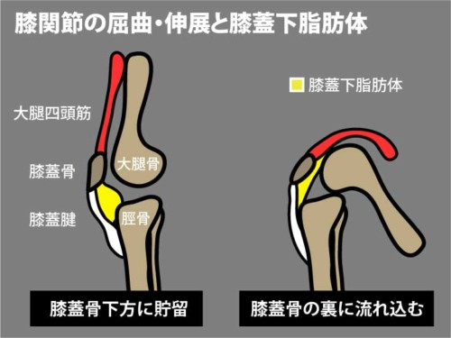 膝関節の屈曲伸展と膝蓋下脂肪体