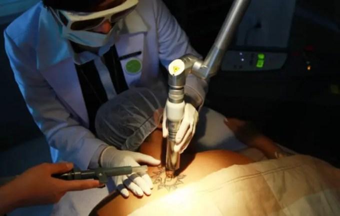 cara menghilangkan tato dengan teknik pembedahan