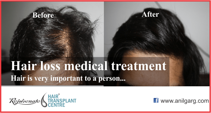 Hair Loss Medical Treatment