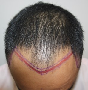 How Hair transplant can change life of a person - Result 2