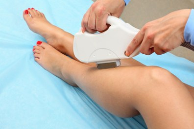 laser hair removal calgary se, douglasdale laser hair removal, Mckenzie Lake hair removal