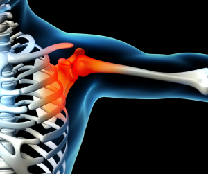 An illustration of a shoulder joint