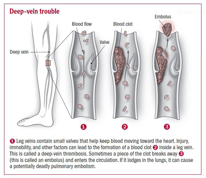 Deep Vein Thrombosis and Endurance Athletes