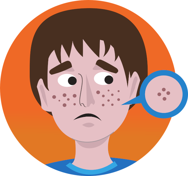 Acne can be a sign of stress