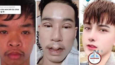 """Photo of Joven se hizo 9 cirugías faciales para encontrar trabajo. Lo rechazaban porque su cara era """"fea"""""""