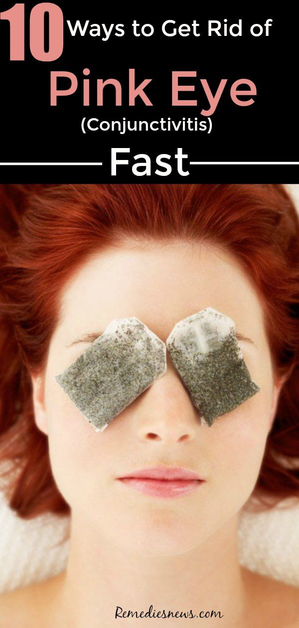 Green tea bag- 10 best ways to get rid of pink eye fast at home