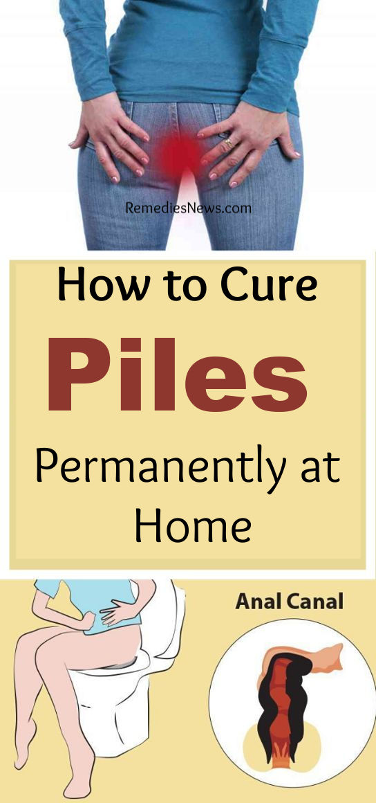 How to Cure Piles Permanently at Home.How to Get Rid Hemorrhoids at Home Fast with 10 Best Home Remedies