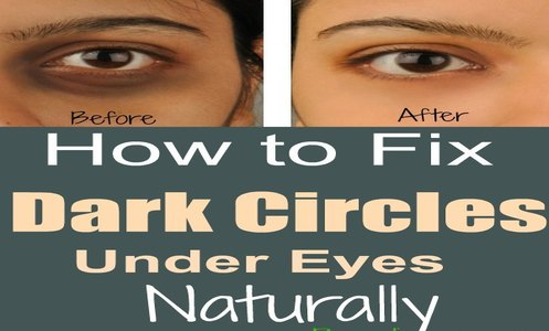 How to Fix Dark Circles Under Eyes Naturally at Home ...