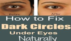 How to Fix Dark Circles Under Eyes Naturally at Home Fast